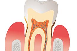 歯ぐきから血が出る、歯がぐらぐらする(歯周病)