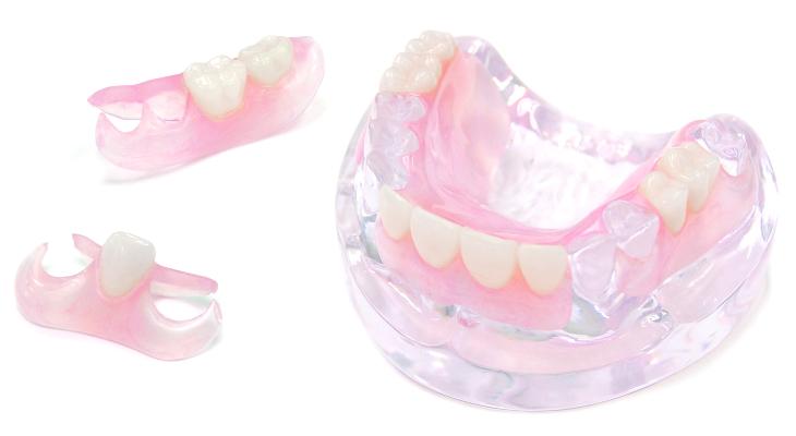 保険適用外(自由診療)の入れ歯
