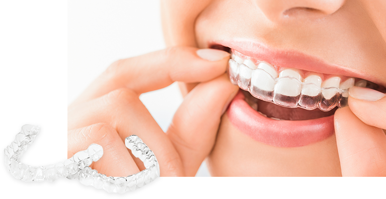 歯並びをきれいにする矯正歯科~透明なマウスピース矯正~